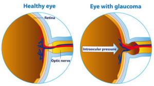 Illustration of an eyeball in a healthy state and in glaucoma.